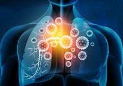 Les infections respiratoires aiguës dans le monde